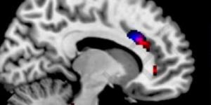 Медицинский факт: смартфоны физически меняют мозг зависимых от них людей